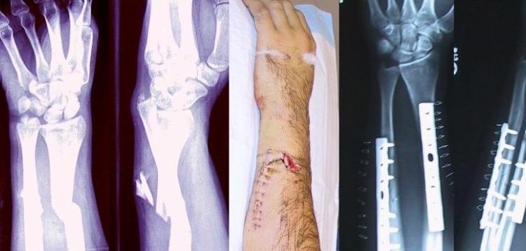 Broken Fixed Arm
