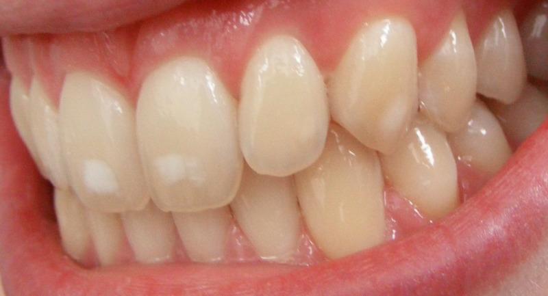 penyebab gigi kuning