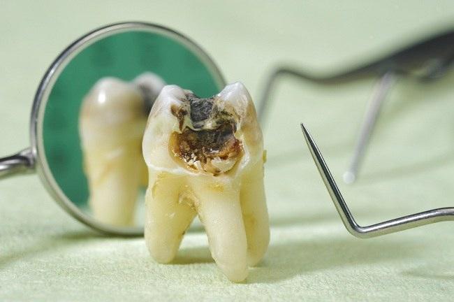 Sakit Gigi Berlubang Ini Penanganannya Alodokter
