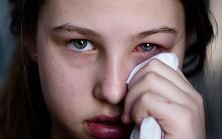 Cara Menyembuhkan Sakit mata Dan Mata Yang Gatal