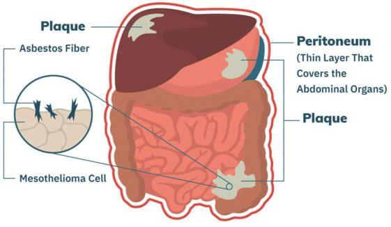 Mesothelioma.com Diagram Peritoneal 1 561x326
