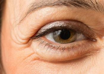 Tips Mudah Menghilangkan Kantung Mata