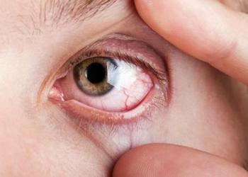 Tips Mengobati Mata Yang Sakit Secara Alami