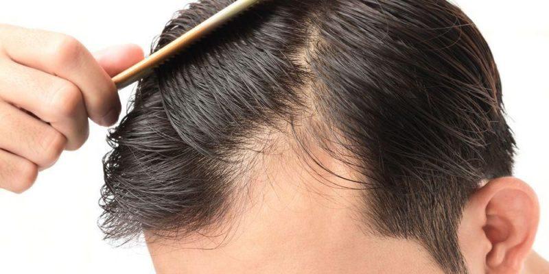 cara cepat menumbuhkan rambut