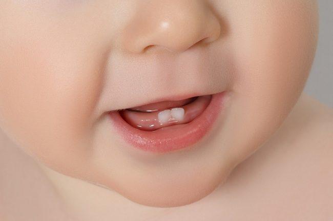 Ayah Dan Bunda Ini Yang Diperlukan Bayi Saat Tumbuh Gigi Alodokter 1
