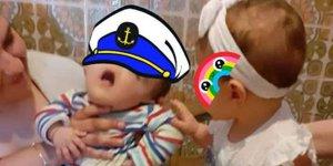 Kondisi Bayi Tanpa Wajah