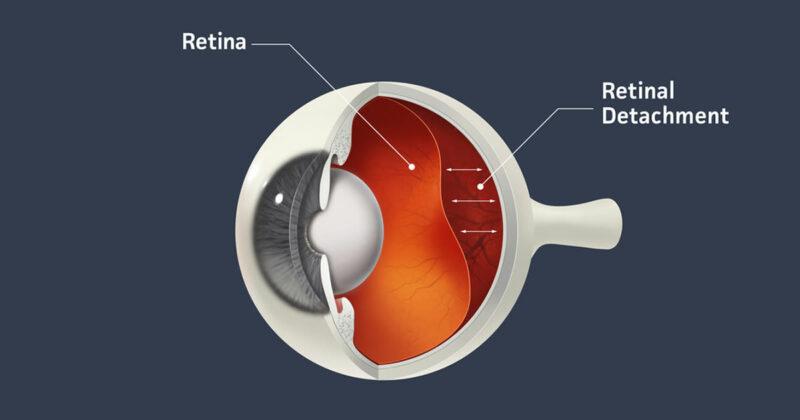 Manfaat Saffron Untuk Menjaga Retina Mata