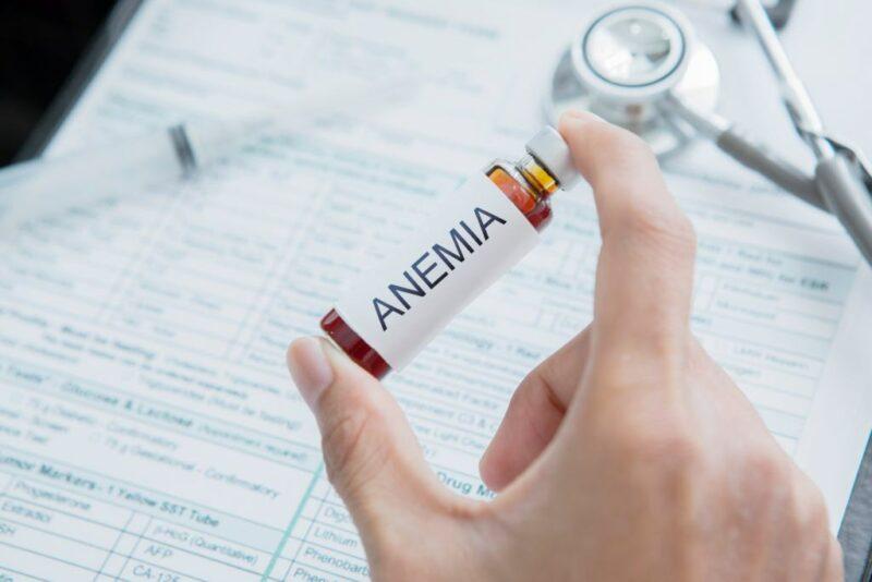 Cara Mengatasi Anemia Dengan Mudah