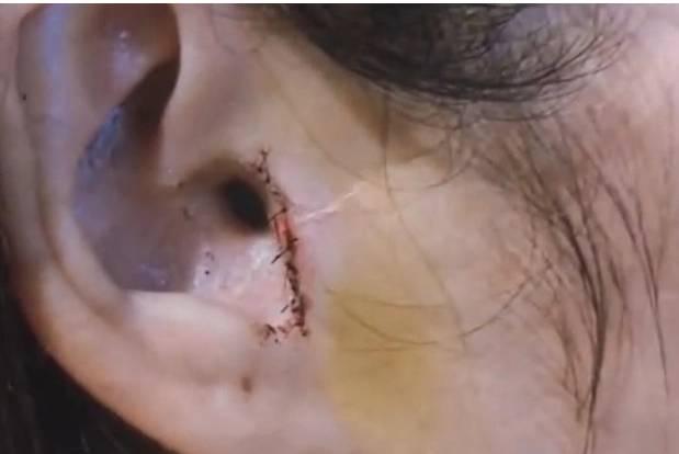 Kehilangan Bagian Dalam Telinga