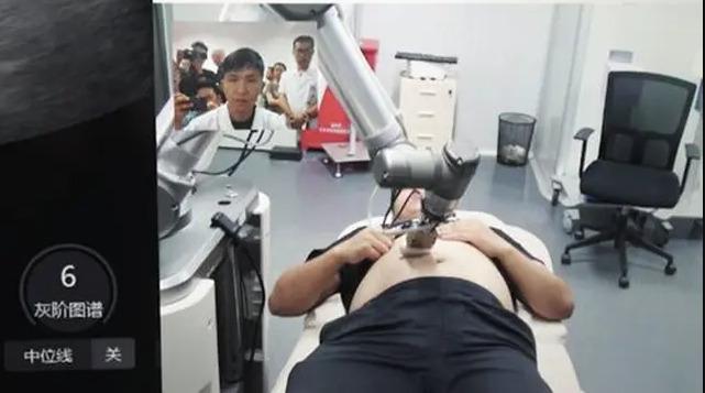 Mengeluh Sakit Perut, Pria Ini Terkejut Ketika Diberitahu Dokter Sedang Hamil