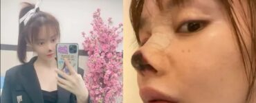 Niat Hati Punya Hidung Sempurna, Tapi Hidung Wanita Ini Membusuk Pasca Operasi